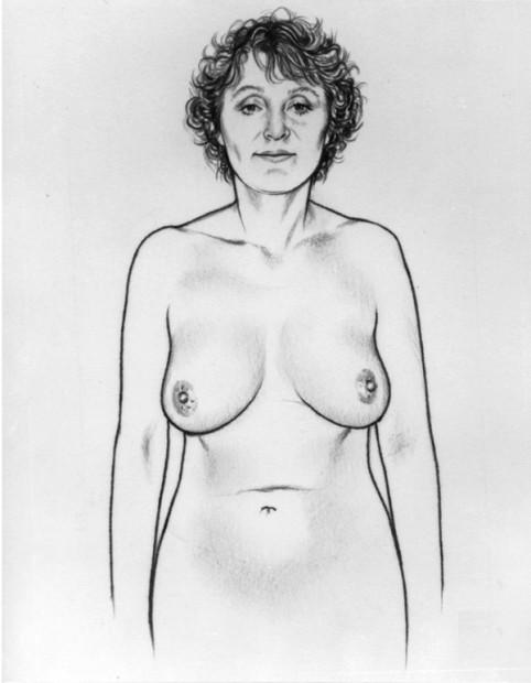 Breast Self Examination-Step 1