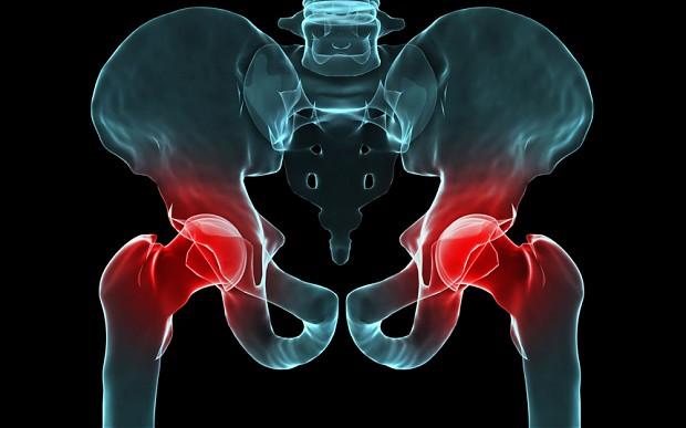 Metal on metal Hip Implant