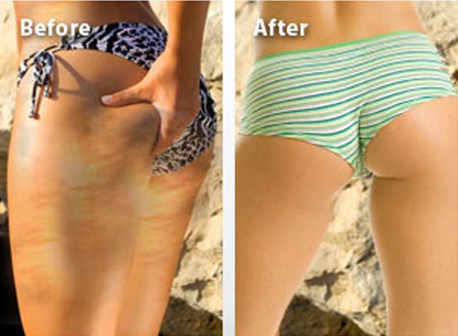 Before and after stretch mark removal