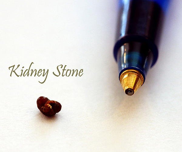 Kidney Stone: Causes and Foods to be Aware of
