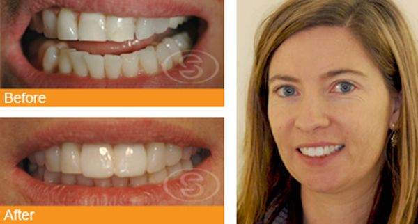 Dental Veneers In Birmingham