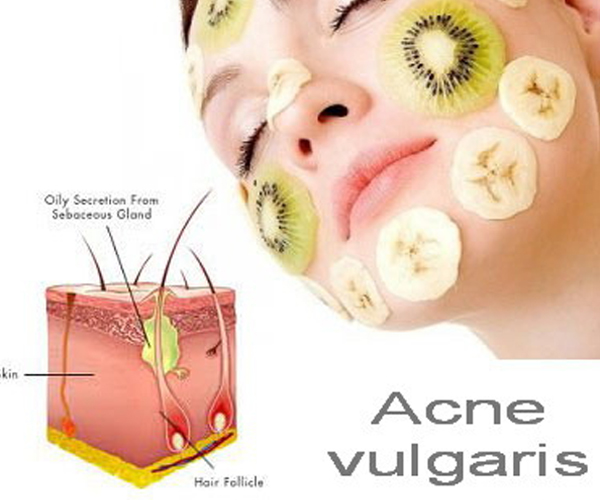 Acne: Know about Most Common Human Skin Disease