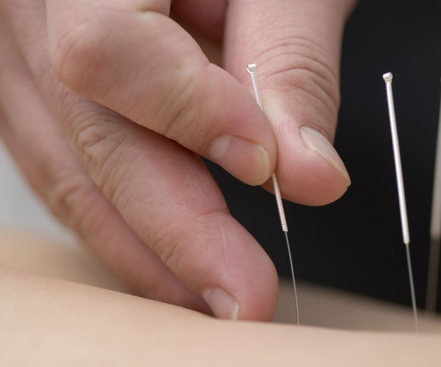 5 Steps for Becoming an Acupuncturist